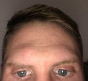 Excess tissue on forehead